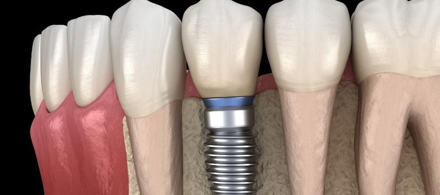 Couronne dentaire artificielle