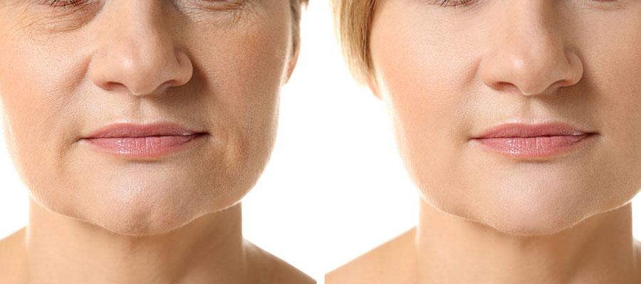 Atténuer les rides du visage
