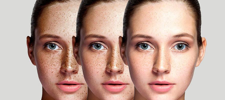 Equipe de professionnelles expertes en dermopigmentation